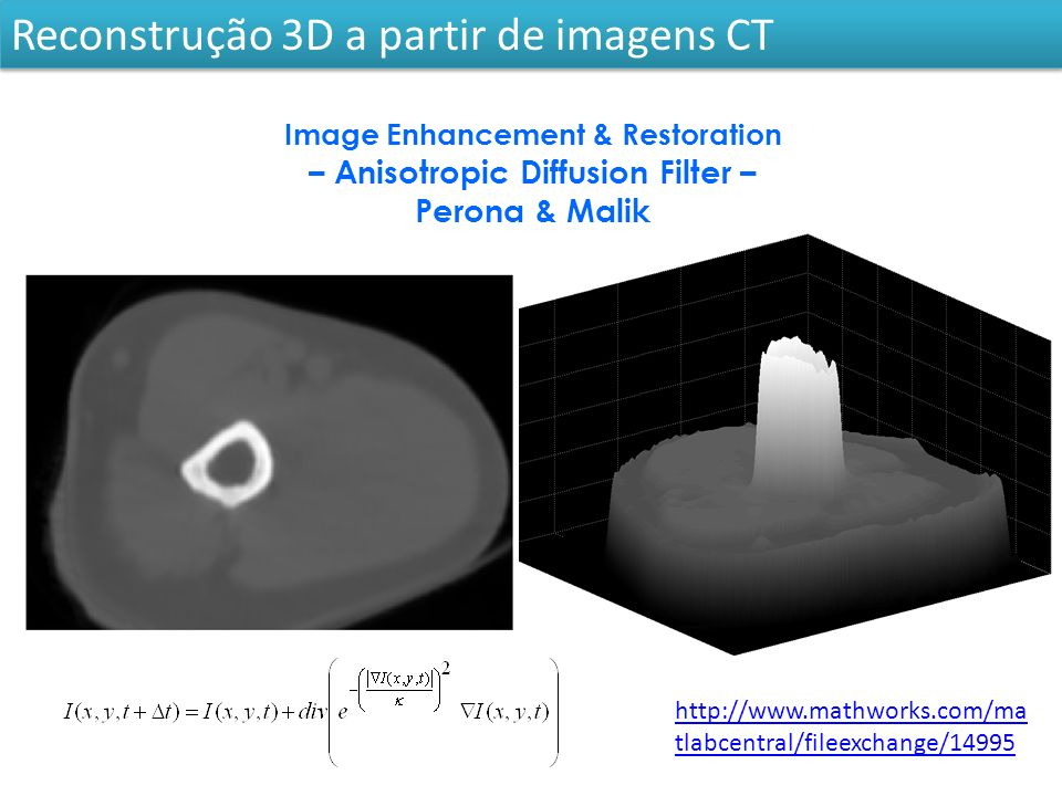 Reconstrução 3D a partir de imagens CT http://www.mathworks.com/ma tlabcentral/fileexchange/14995 Image Enhancement & Restoration – Anisotropic Diffusion Filter – Perona & Malik