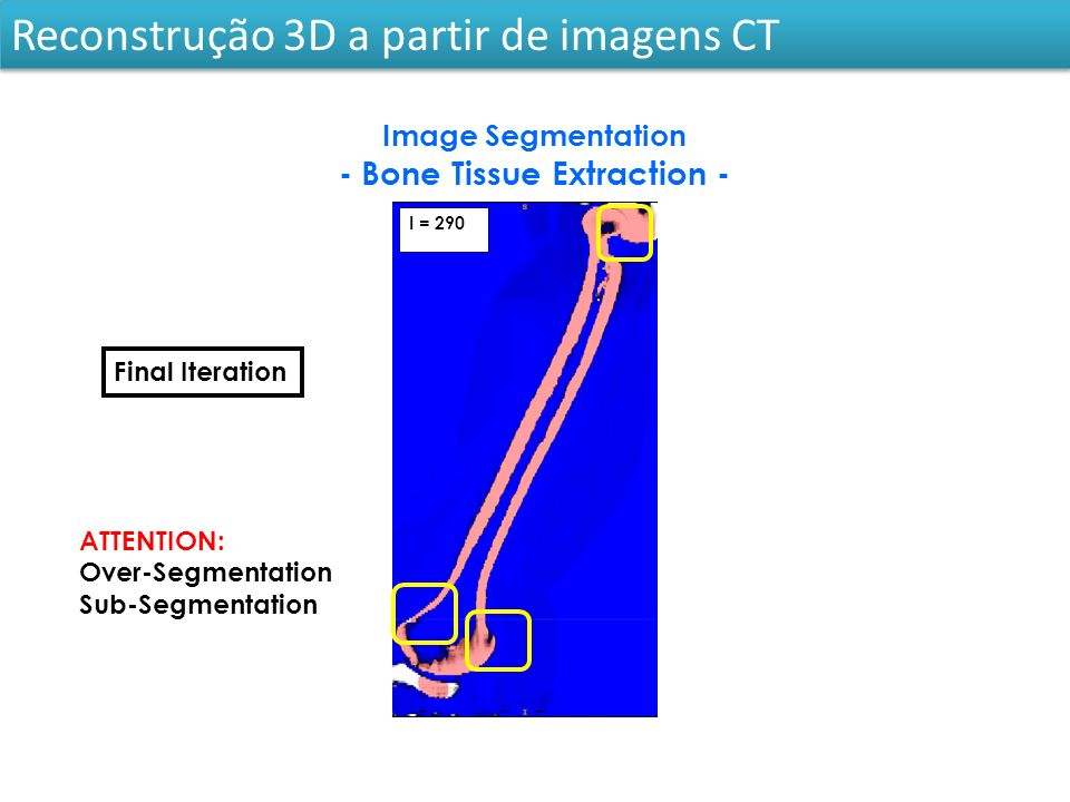 I = 290 ATTENTION: Over-Segmentation Sub-Segmentation Final Iteration Image Segmentation - Bone Tissue Extraction - Reconstrução 3D a partir de imagens CT