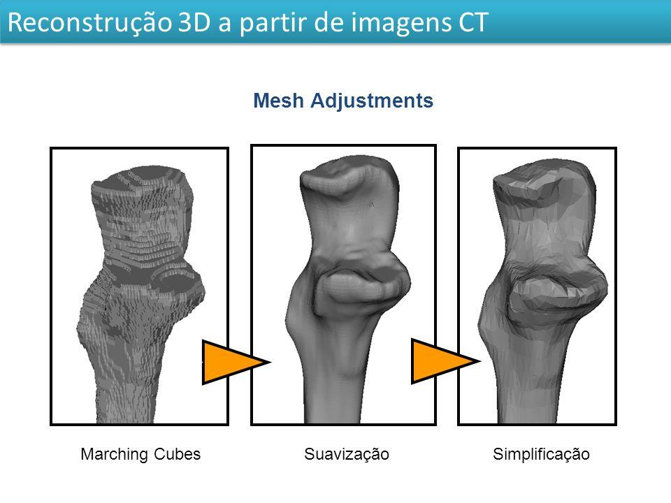 Real BoneSmoothS QC S Reconstrução 3D a partir de imagens CT