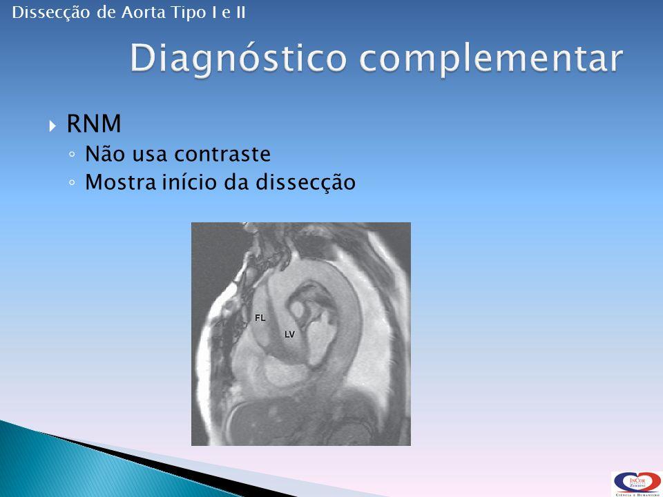 RNM Não usa contraste Mostra início da dissecção Dissecção de Aorta Tipo I e II