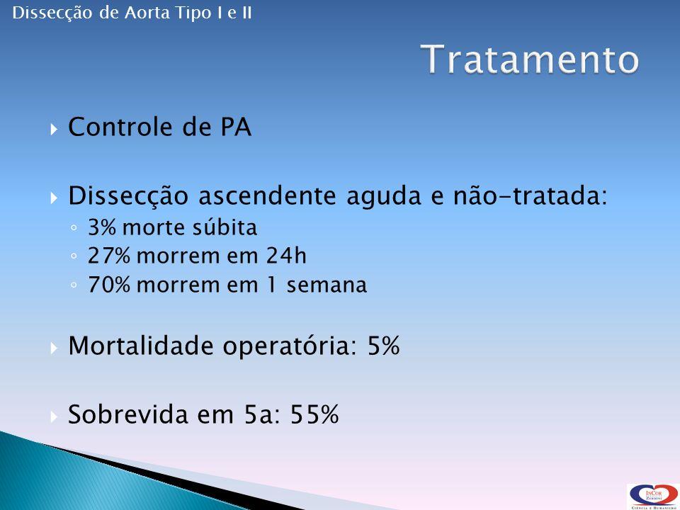 Controle de PA Dissecção ascendente aguda e não-tratada: 3% morte súbita 27% morrem em 24h 70% morrem em 1 semana Mortalidade operatória: 5% Sobrevida em 5a: 55% Dissecção de Aorta Tipo I e II