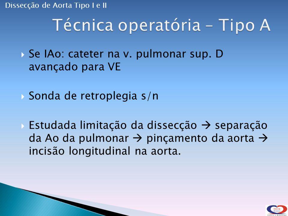 Se IAo: cateter na v.pulmonar sup.