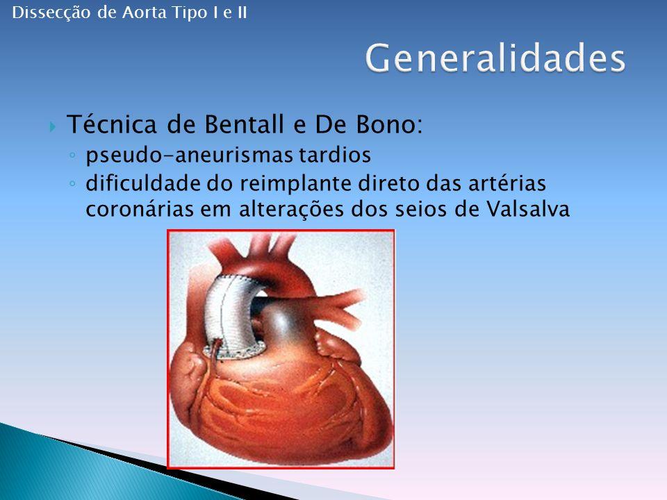Técnica de Bentall e De Bono: pseudo-aneurismas tardios dificuldade do reimplante direto das artérias coronárias em alterações dos seios de Valsalva Dissecção de Aorta Tipo I e II