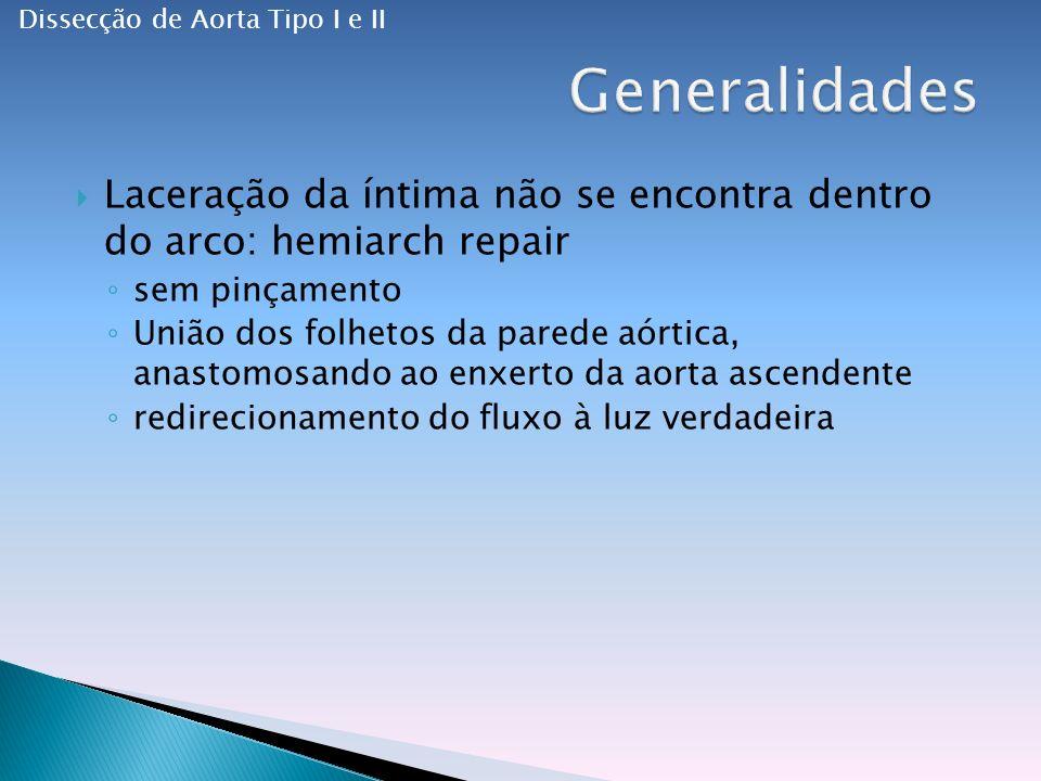 Laceração da íntima não se encontra dentro do arco: hemiarch repair sem pinçamento União dos folhetos da parede aórtica, anastomosando ao enxerto da aorta ascendente redirecionamento do fluxo à luz verdadeira Dissecção de Aorta Tipo I e II