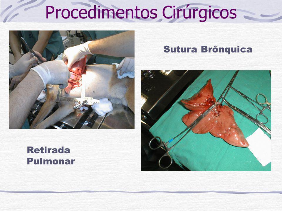 Procedimentos Cirúrgicos Retirada Pulmonar Sutura Brônquica
