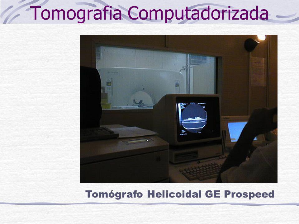 Tomografia Computadorizada Tomógrafo Helicoidal GE Prospeed