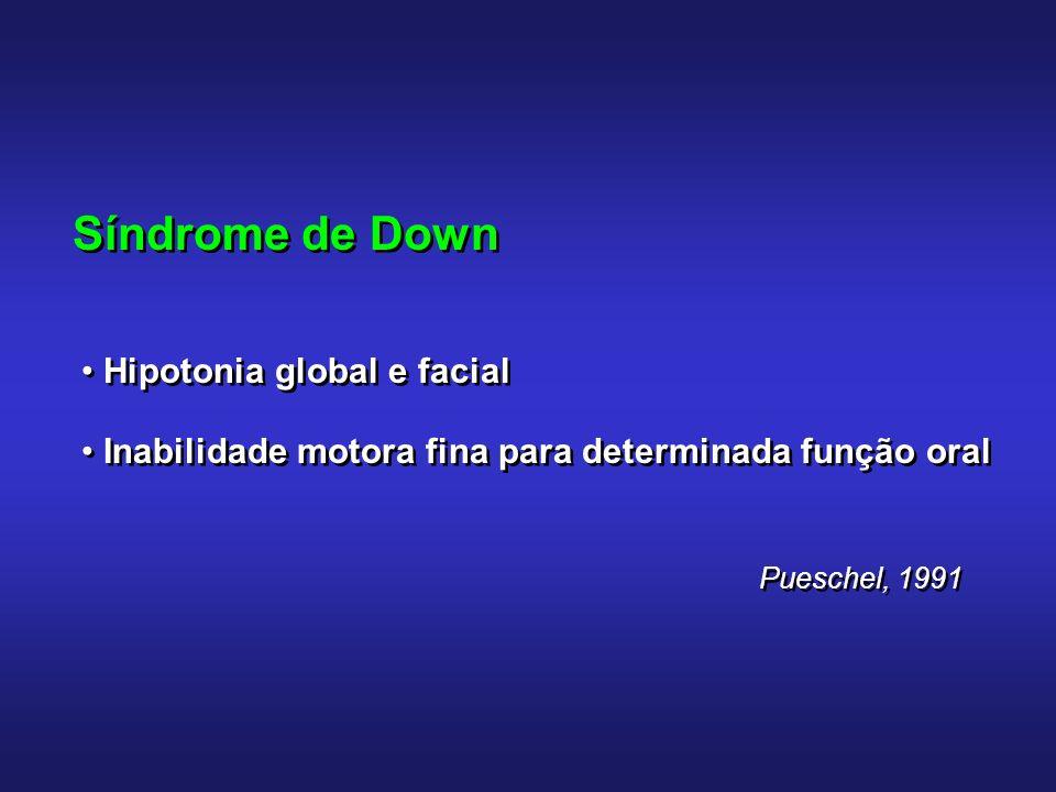 Síndrome de Down Terapia de fonoaudiologia: Aquisição de movimentos mais funcionais Posturas, biomecânica que favoreçam: - respiração nasal - contato labial - articulação de sons que dependam das estruturas do C.
