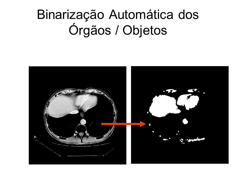 Binarização Automática dos Órgãos / Objetos