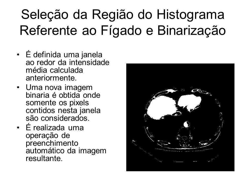 Seleção da Região do Histograma Referente ao Fígado e Binarização É definida uma janela ao redor da intensidade média calculada anteriormente.