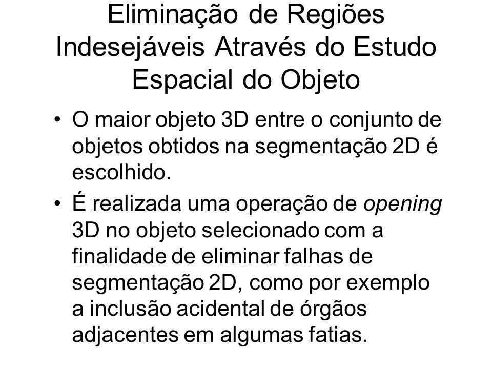 Eliminação de Regiões Indesejáveis Através do Estudo Espacial do Objeto O maior objeto 3D entre o conjunto de objetos obtidos na segmentação 2D é escolhido.