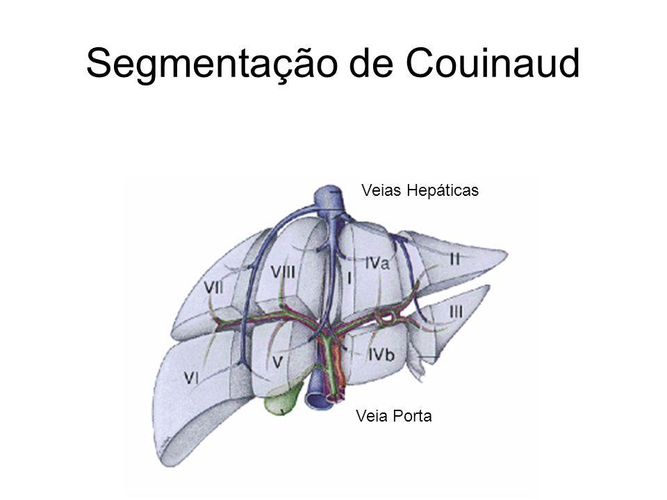 Segmentação de Couinaud Veia Porta Veias Hepáticas