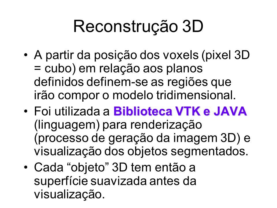 Reconstrução 3D A partir da posição dos voxels (pixel 3D = cubo) em relação aos planos definidos definem-se as regiões que irão compor o modelo tridimensional.