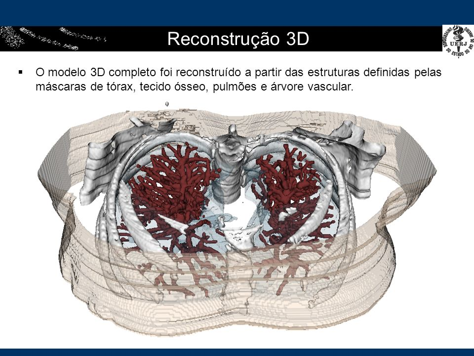 O modelo 3D completo foi reconstruído a partir das estruturas definidas pelas máscaras de tórax, tecido ósseo, pulmões e árvore vascular.