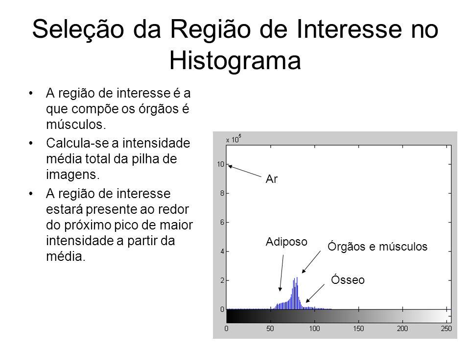 Seleção da Região de Interesse no Histograma A região de interesse é a que compõe os órgãos é músculos.
