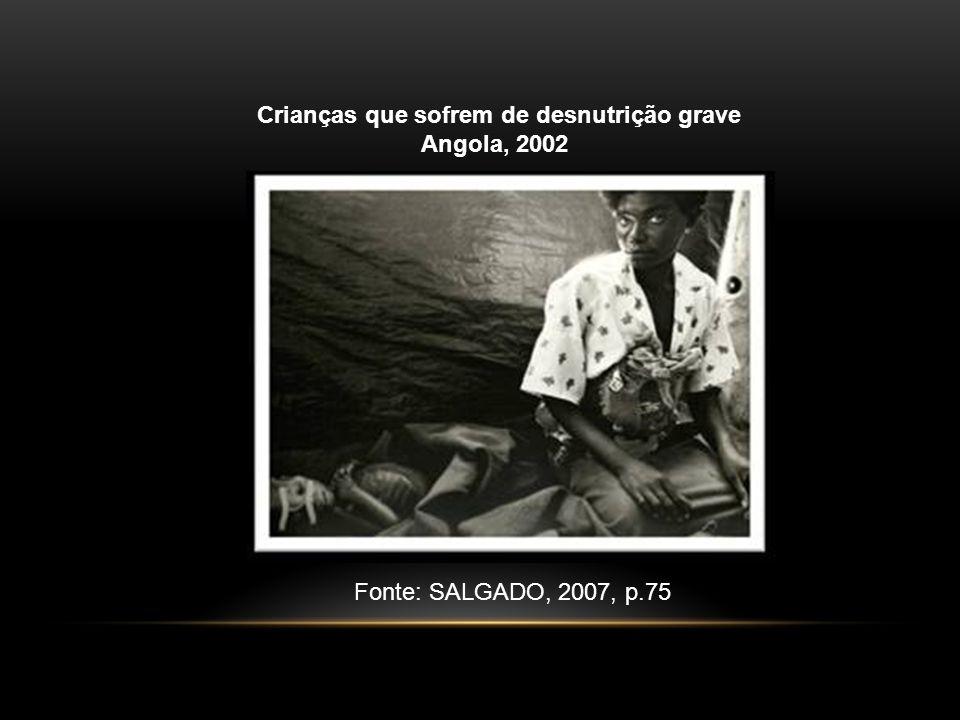 Crianças que sofrem de desnutrição grave Angola, 2002 Fonte: SALGADO, 2007, p.75