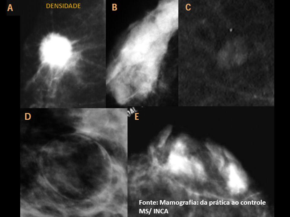 Fonte: Mamografia: da prática ao controle MS/ INCA DENSIDADE