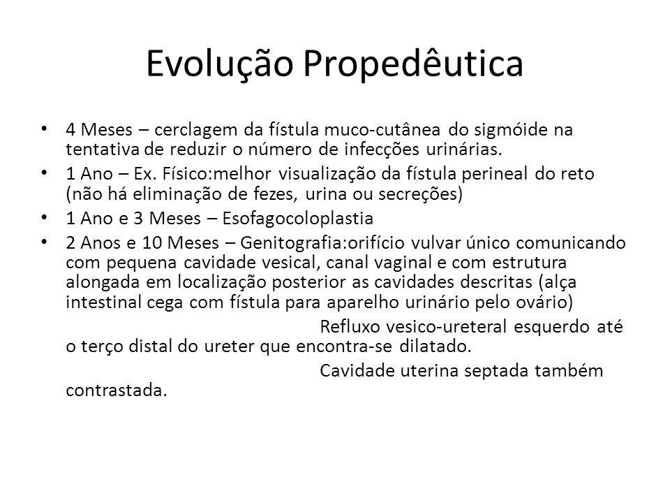 Evolução Propedêutica 4 Meses – cerclagem da fístula muco-cutânea do sigmóide na tentativa de reduzir o número de infecções urinárias.