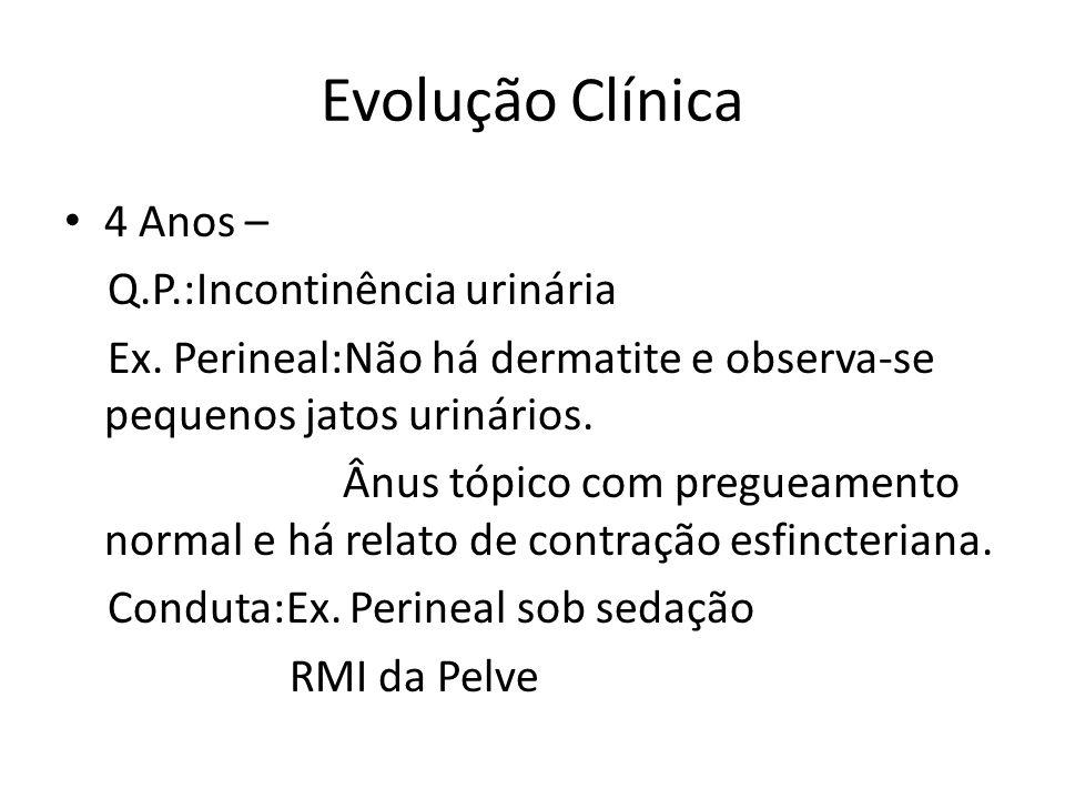 Evolução Clínica 4 Anos – Q.P.:Incontinência urinária Ex.