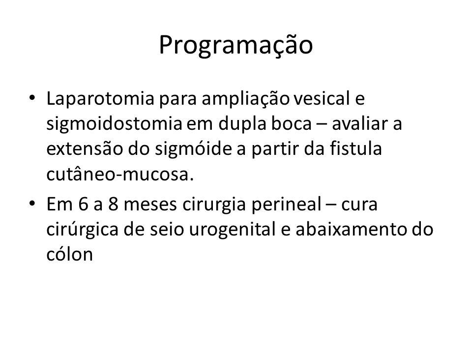 Programação Laparotomia para ampliação vesical e sigmoidostomia em dupla boca – avaliar a extensão do sigmóide a partir da fistula cutâneo-mucosa.