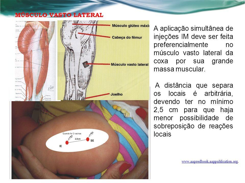 A aplicação simultânea de injeções IM deve ser feita preferencialmente no músculo vasto lateral da coxa por sua grande massa muscular.
