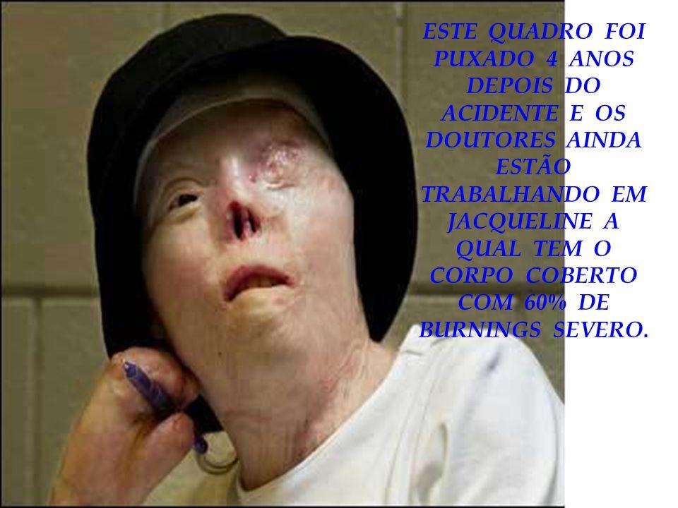 ESTE QUADRO FOI PUXADO 4 ANOS DEPOIS DO ACIDENTE E OS DOUTORES AINDA ESTÃO TRABALHANDO EM JACQUELINE A QUAL TEM O CORPO COBERTO COM 60% DE BURNINGS SE