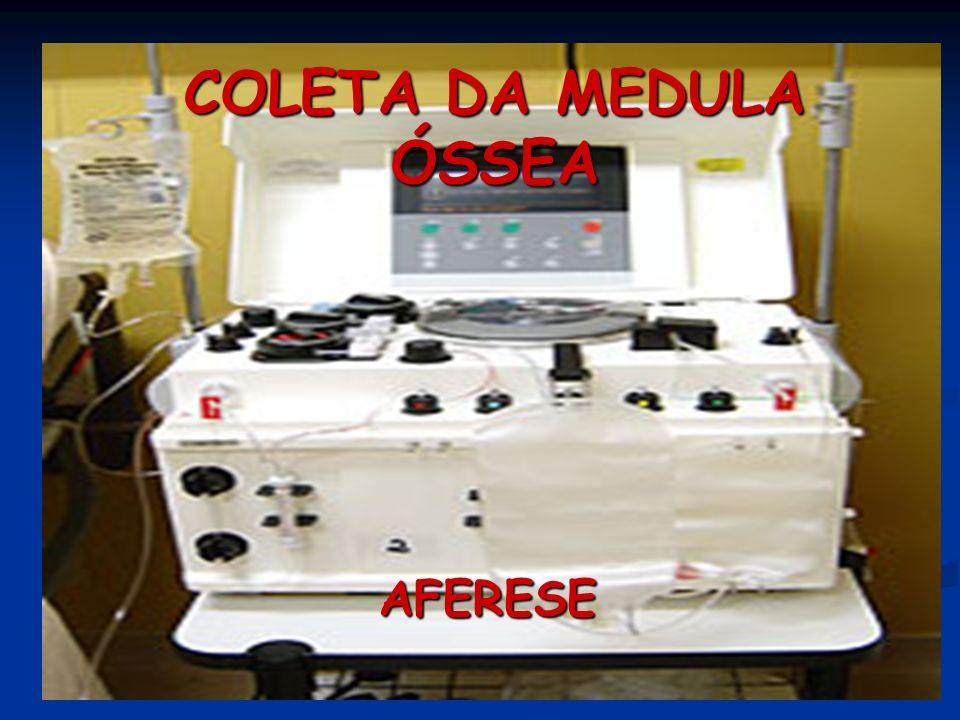 AFERESE COLETA DA MEDULA ÓSSEA