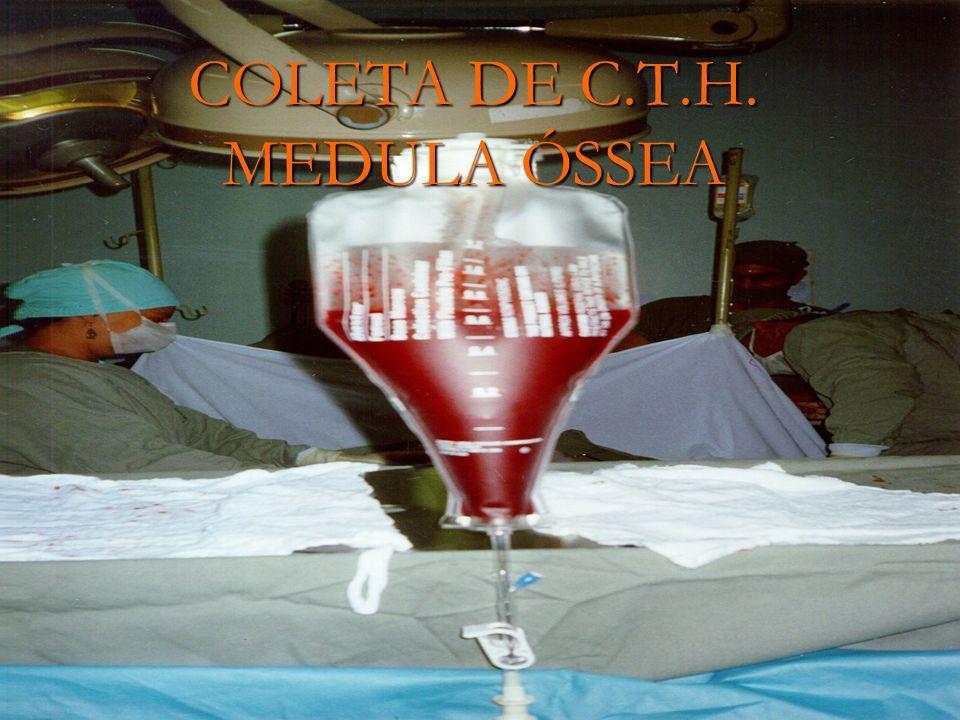 COLETA DE C.T.H. MEDULA ÓSSEA