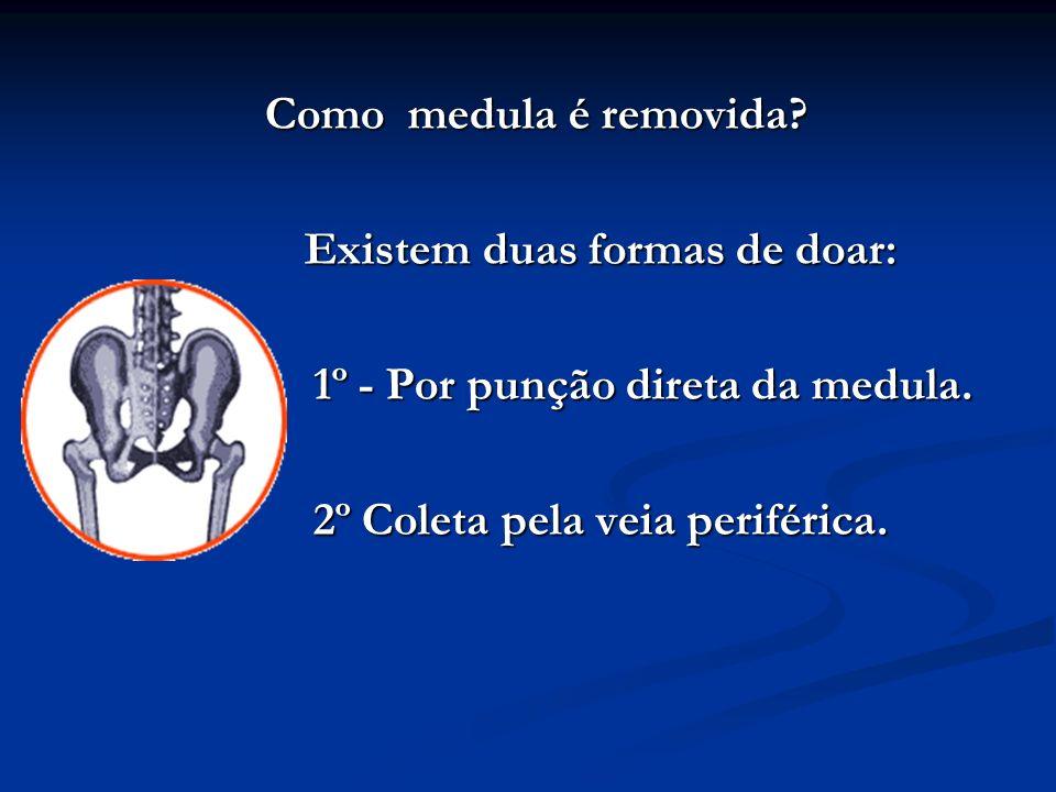 Como medula é removida? Existem duas formas de doar: Existem duas formas de doar: 1º - Por punção direta da medula. 1º - Por punção direta da medula.