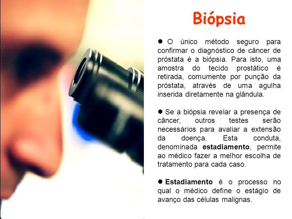 Biópsia O único método seguro para confirmar o diagnóstico de câncer de próstata é a biópsia. Para isto, uma amostra do tecido prostático é retirada,