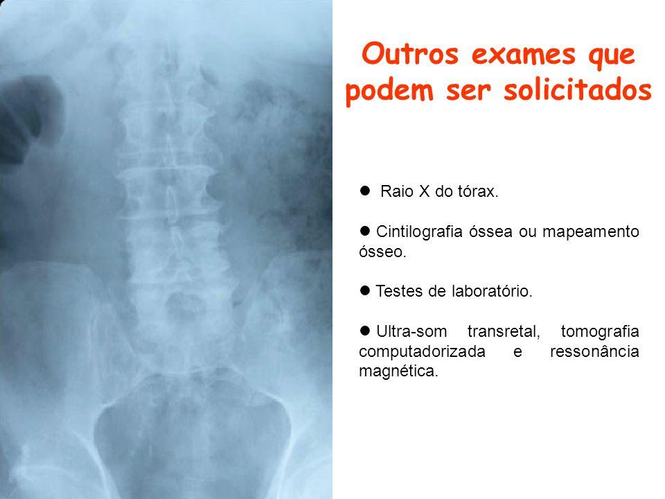 Outros exames que podem ser solicitados Raio X do tórax. Cintilografia óssea ou mapeamento ósseo. Testes de laboratório. Ultra-som transretal, tomogra