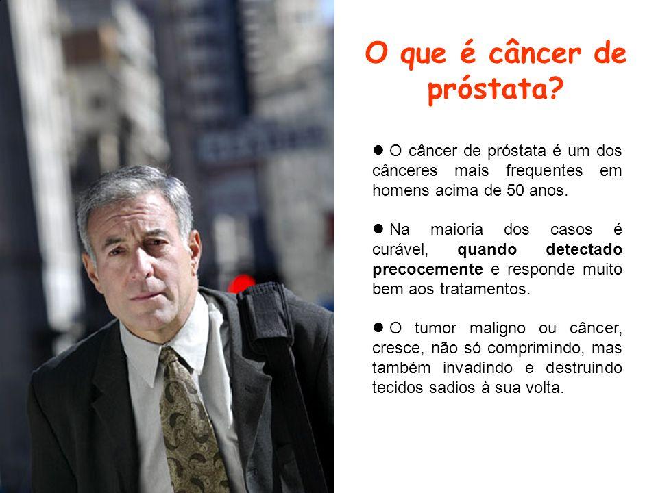 O que é câncer de próstata? O câncer de próstata é um dos cânceres mais frequentes em homens acima de 50 anos. Na maioria dos casos é curável, quando