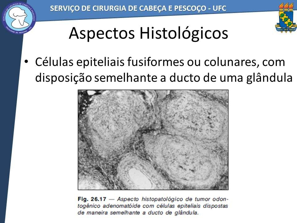 Aspectos Histológicos Células epiteliais fusiformes ou colunares, com disposição semelhante a ducto de uma glândula
