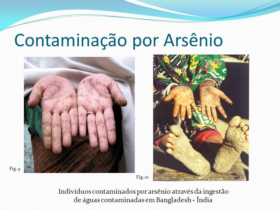 Contaminação por Arsênio Fig. 9 Fig. 10 Indivíduos contaminados por arsênio através da ingestão de águas contaminadas em Bangladesh - Índia