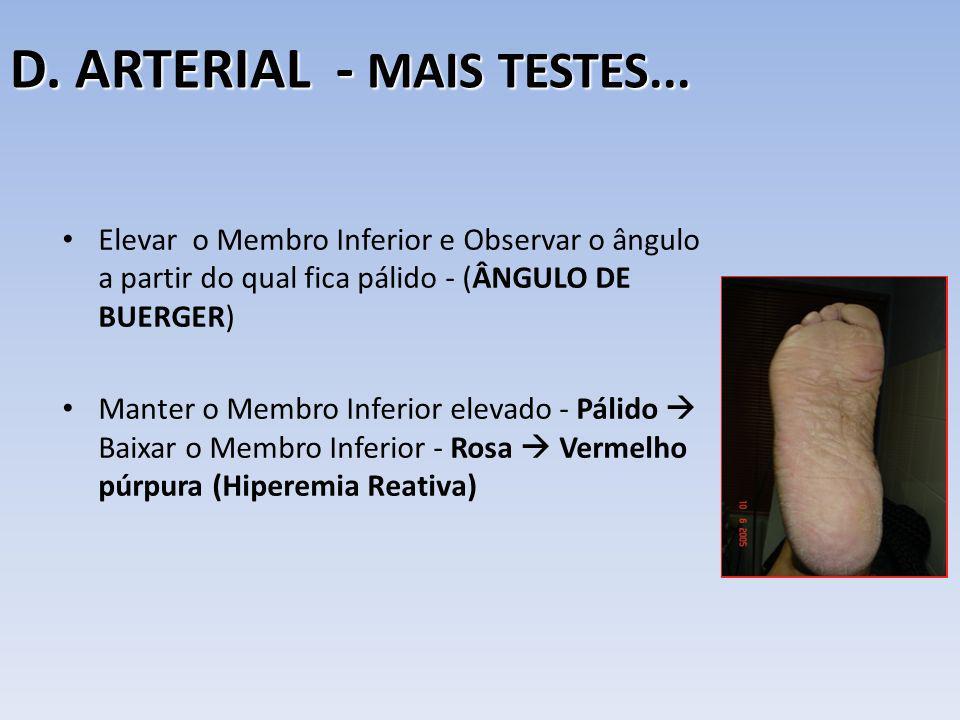 D. ARTERIAL - MAIS TESTES... Elevar o Membro Inferior e Observar o ângulo a partir do qual fica pálido - (ÂNGULO DE BUERGER) Manter o Membro Inferior
