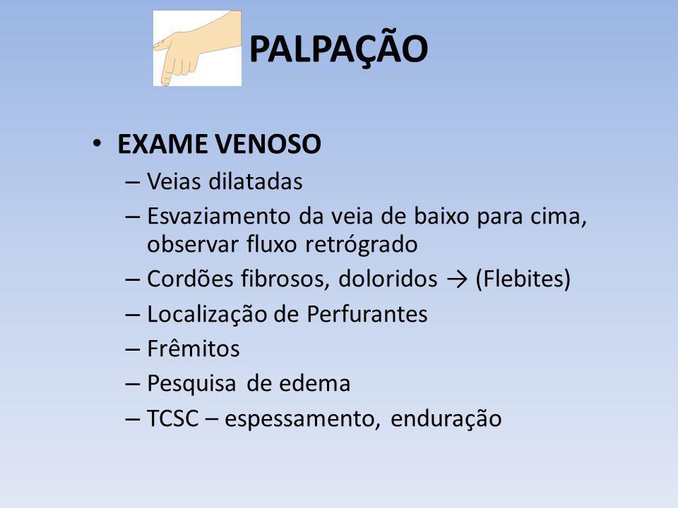 PALPAÇÃO EXAME VENOSO – Veias dilatadas – Esvaziamento da veia de baixo para cima, observar fluxo retrógrado – Cordões fibrosos, doloridos (Flebites)