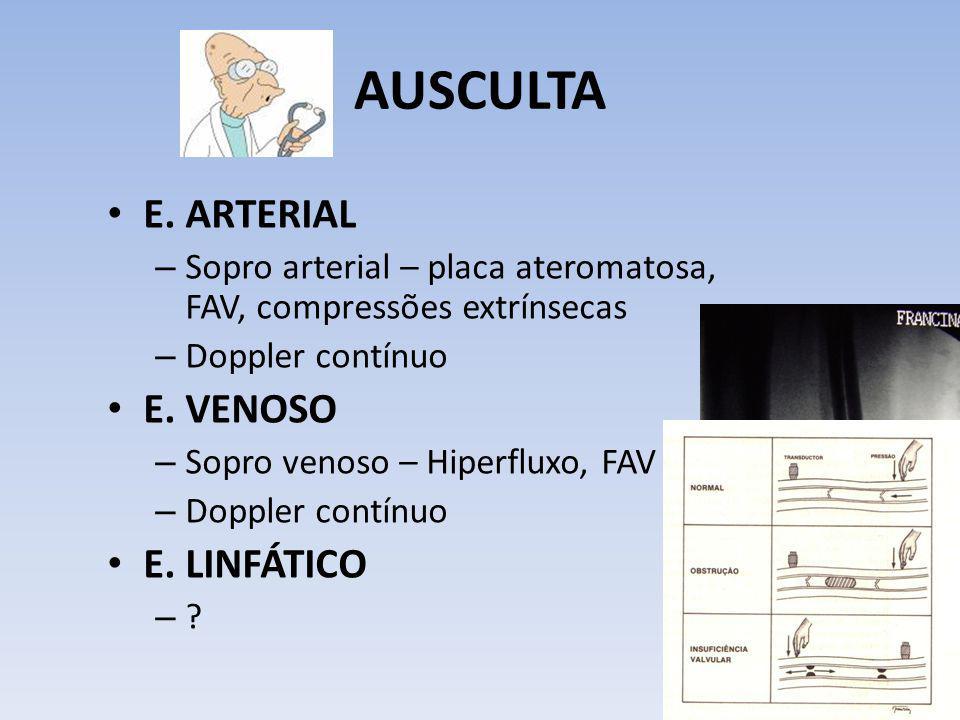 AUSCULTA E. ARTERIAL – Sopro arterial – placa ateromatosa, FAV, compressões extrínsecas – Doppler contínuo E. VENOSO – Sopro venoso – Hiperfluxo, FAV