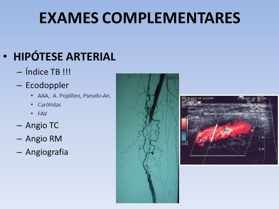 EXAMES COMPLEMENTARES HIPÓTESE ARTERIAL – Índice TB !!! – Ecodoppler AAA, A. Poplíteo, Pseudo-An. Carótidas FAV – Angio TC – Angio RM – Angiografia