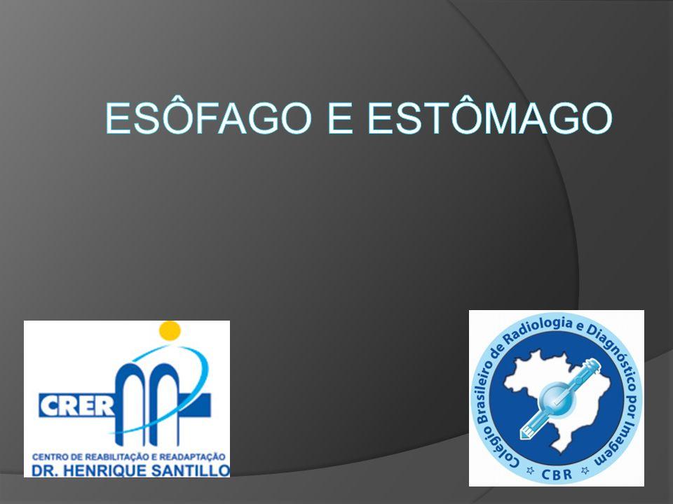 Acalasia da cárdia Estreitamento da junção esofago-gástrica e dilatação do esôfago a montante, aspecto denominado em bico de pássaro