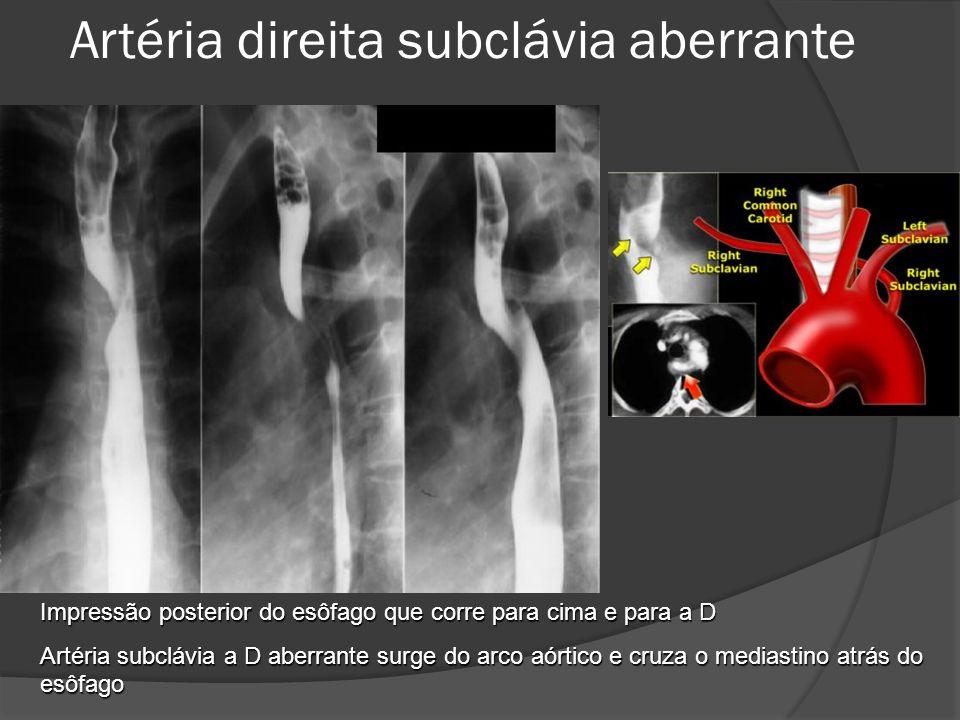 Impressão posterior do esôfago que corre para cima e para a D Artéria subclávia a D aberrante surge do arco aórtico e cruza o mediastino atrás do esôf