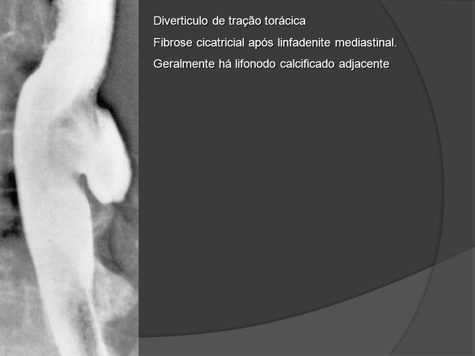 Diverticulo de tração torácica Fibrose cicatricial após linfadenite mediastinal. Geralmente há lifonodo calcificado adjacente