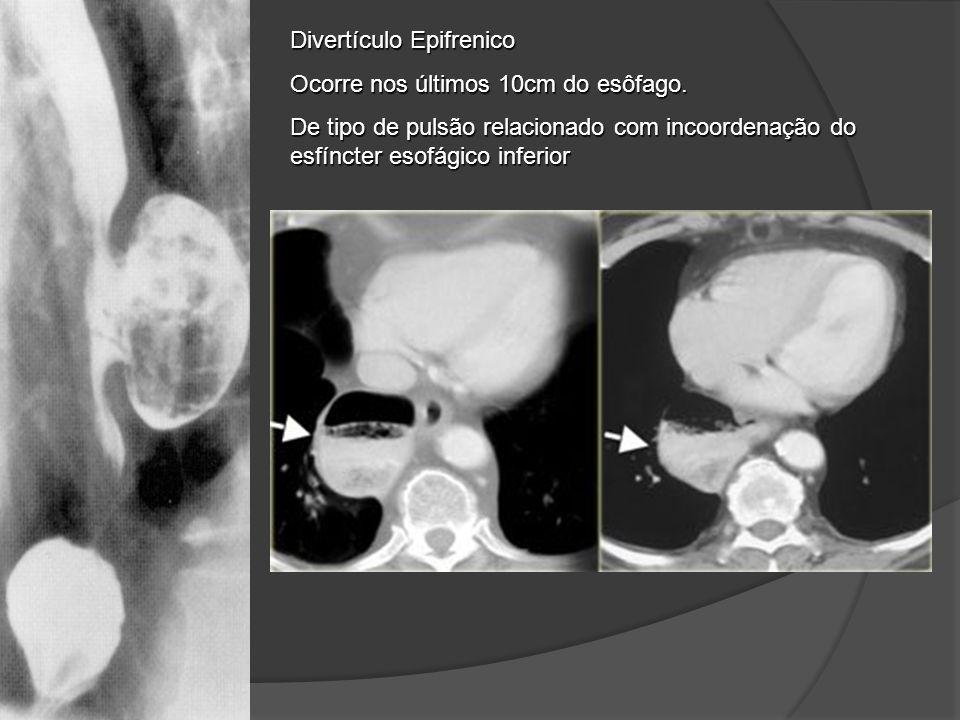 Divertículo Epifrenico Ocorre nos últimos 10cm do esôfago. De tipo de pulsão relacionado com incoordenação do esfíncter esofágico inferior