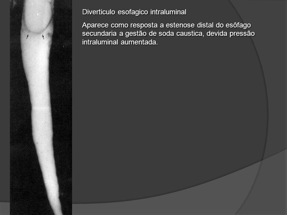 Diverticulo esofagico intraluminal Aparece como resposta a estenose distal do esôfago secundaria a gestão de soda caustica, devida pressão intralumina