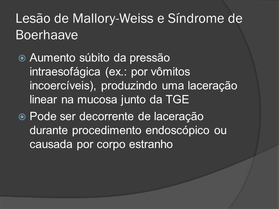 Lesão de Mallory-Weiss e Síndrome de Boerhaave Aumento súbito da pressão intraesofágica (ex.: por vômitos incoercíveis), produzindo uma laceração line