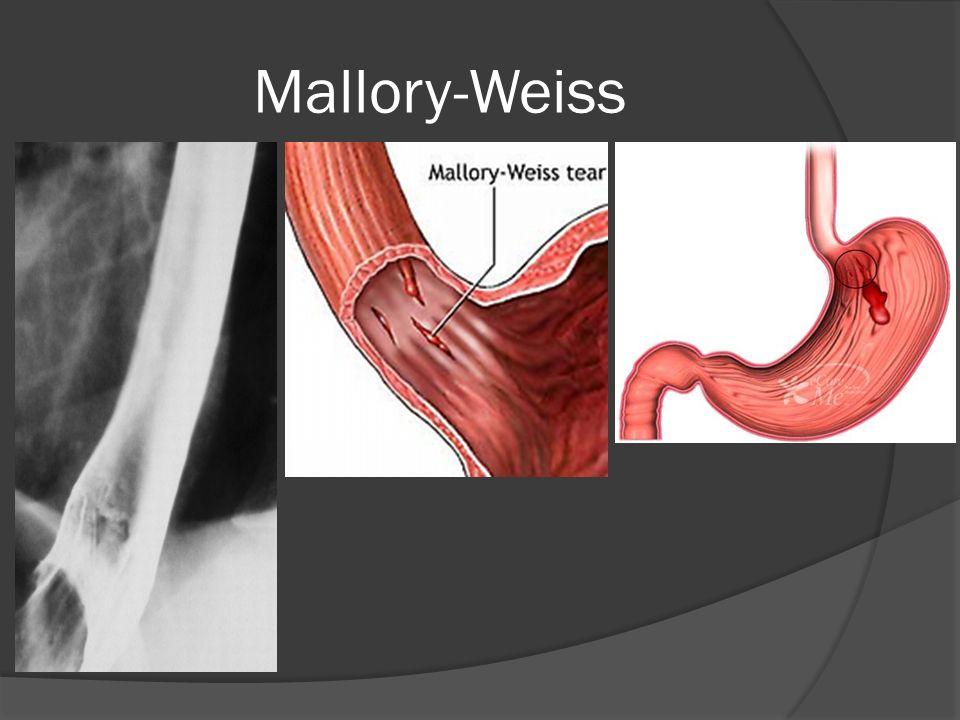 Mallory-Weiss