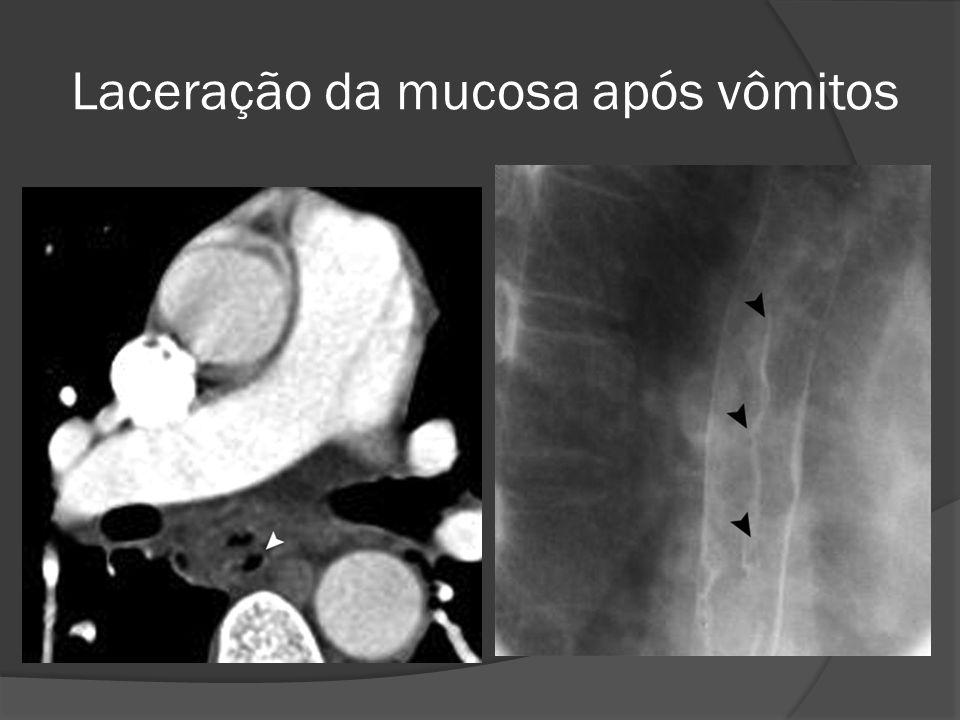 Laceração da mucosa após vômitos