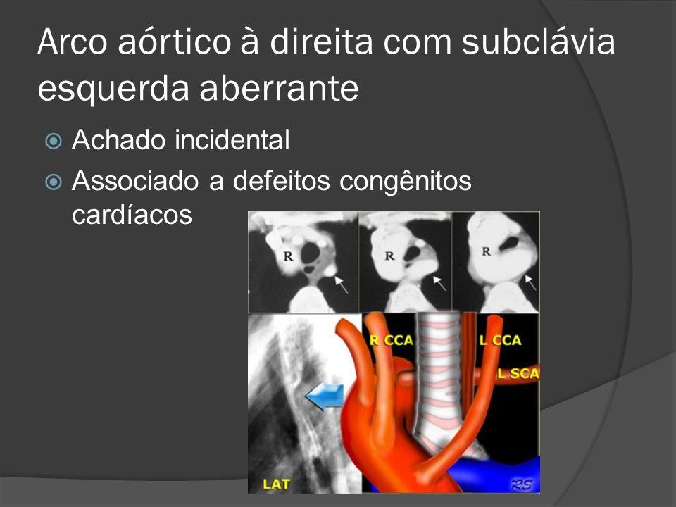 Arco aórtico à direita com subclávia esquerda aberrante Achado incidental Associado a defeitos congênitos cardíacos