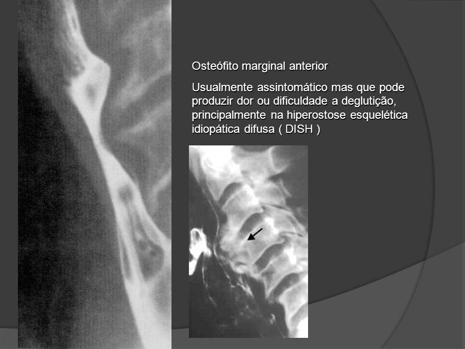 Osteófito marginal anterior Usualmente assintomático mas que pode produzir dor ou dificuldade a deglutição, principalmente na hiperostose esquelética