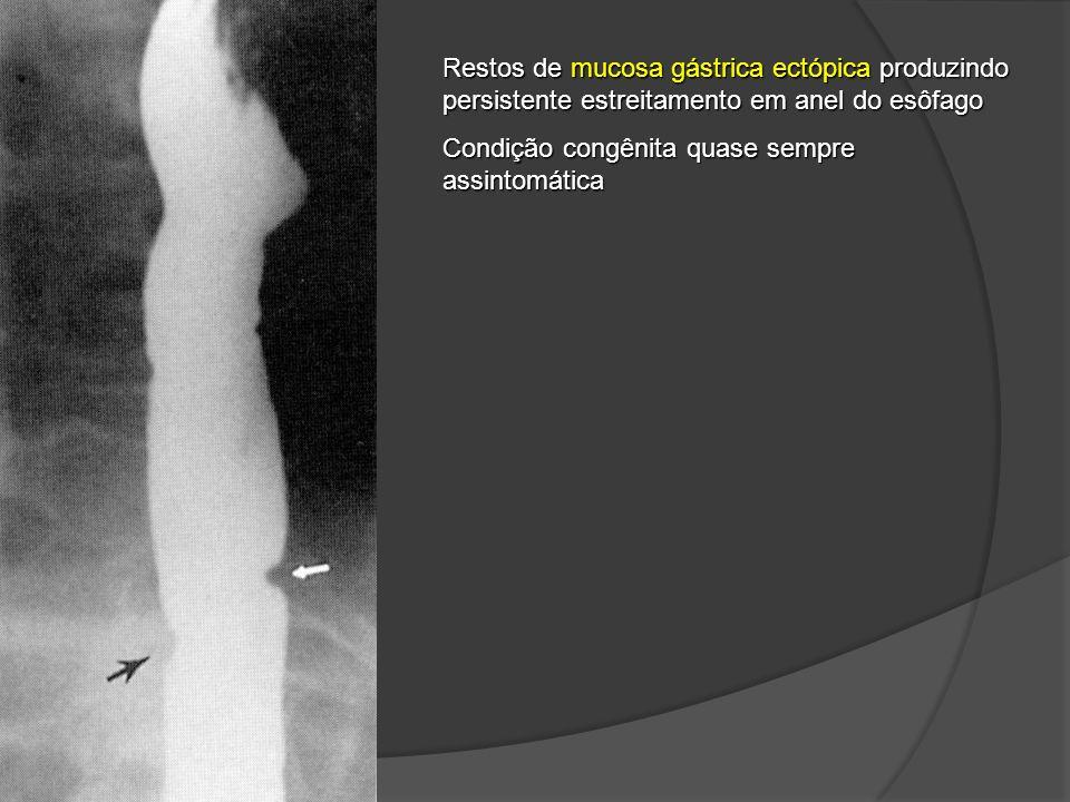 Restos de mucosa gástrica ectópica produzindo persistente estreitamento em anel do esôfago Condição congênita quase sempre assintomática