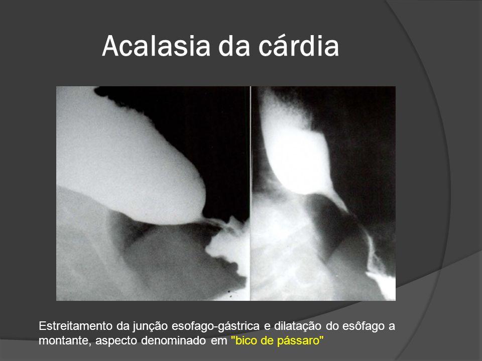 Acalasia da cárdia Estreitamento da junção esofago-gástrica e dilatação do esôfago a montante, aspecto denominado em