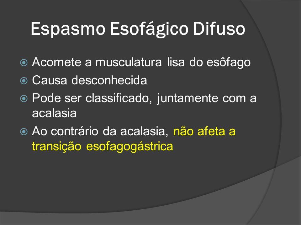 Espasmo Esofágico Difuso Acomete a musculatura lisa do esôfago Causa desconhecida Pode ser classificado, juntamente com a acalasia Ao contrário da aca